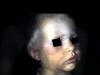 multiple-em-lesions-infant-face