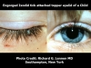 engorged-ixodid-tick-attached-to-eyelid-of-a-child