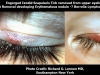 erythematous-nodule-of-eyeid-post-tick-removal